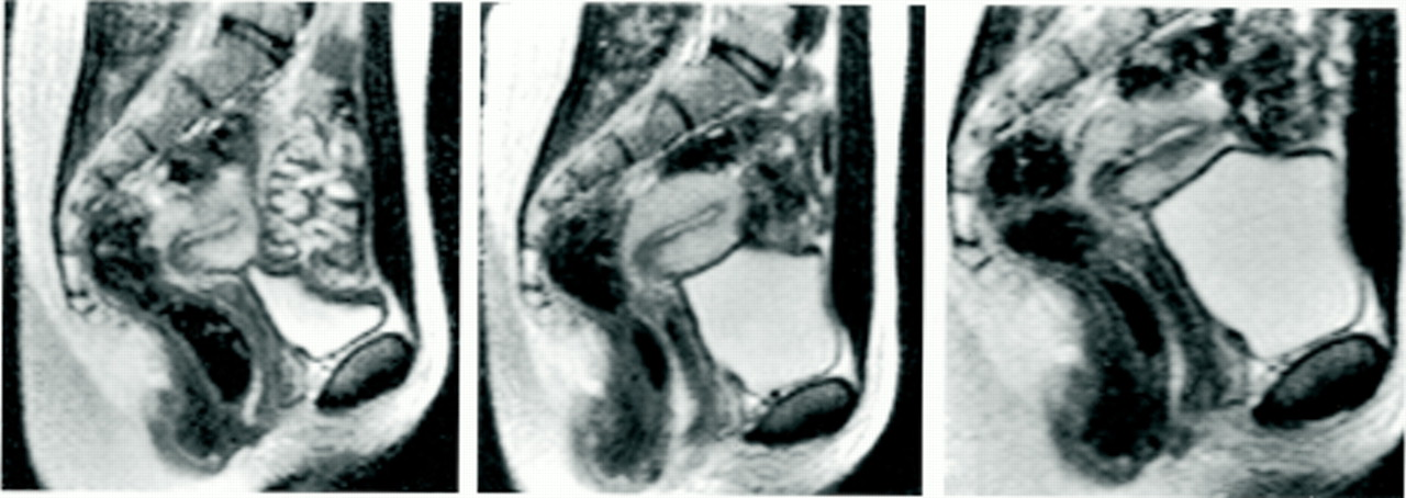 Mri Of Sexual Intercourse